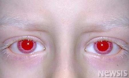 '빨간 눈동자'의 빨간눈은 피가 비친 것