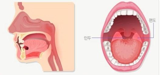 김우빈 투병 중인 '비인두암'이란? 뇌-입천장 사이 발병…방사선 치료 효과적