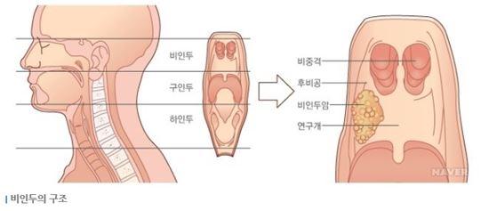 김우빈 투병, 비인두암은 어떤 병?