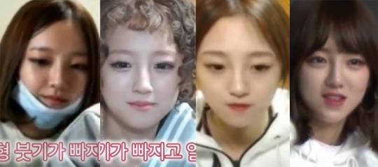 """아프리카TV 'BJ 외질혜' 성형 변천사…""""성형은 좋은 것이었어"""""""
