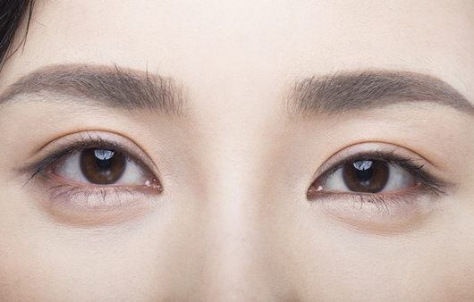피곤해보이는 인상 개선, '눈 밑 성형' 각광 받는 이유