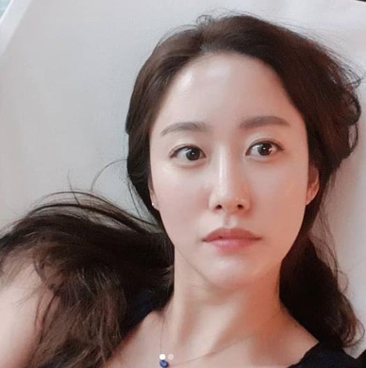 전혜빈 나이, 결혼 소식에 남편 누구?