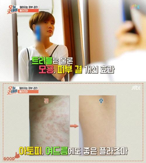목주름, 팔자주름 없애는 방법, 안티에이징 피부관리에 `플라즈마` 탁월, JTBC `오늘 굿데이`