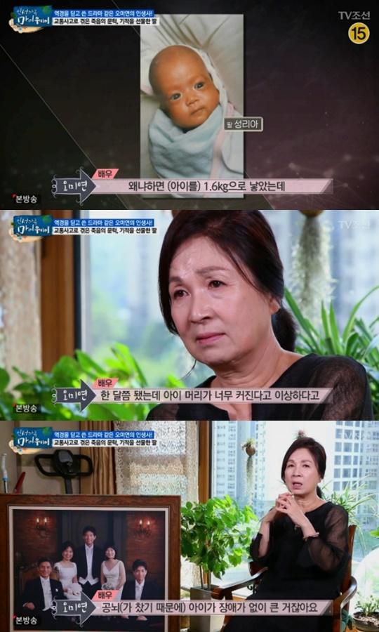 """'마이웨이' 오미연 """"임신 중 교통사고, 조산한 딸 장애 위험까지"""""""