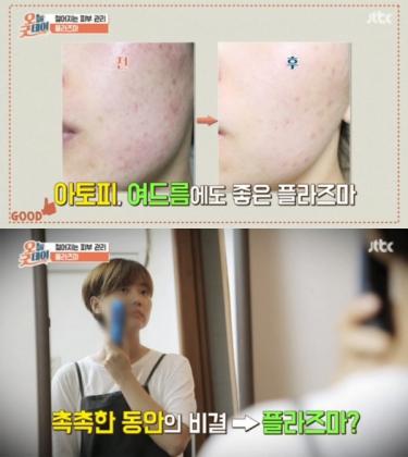 `플라즈마 플라베네 뷰티` 피부관리기 눈길…JTBC '오늘굿데이' 안티에이징 피부관리법 추천
