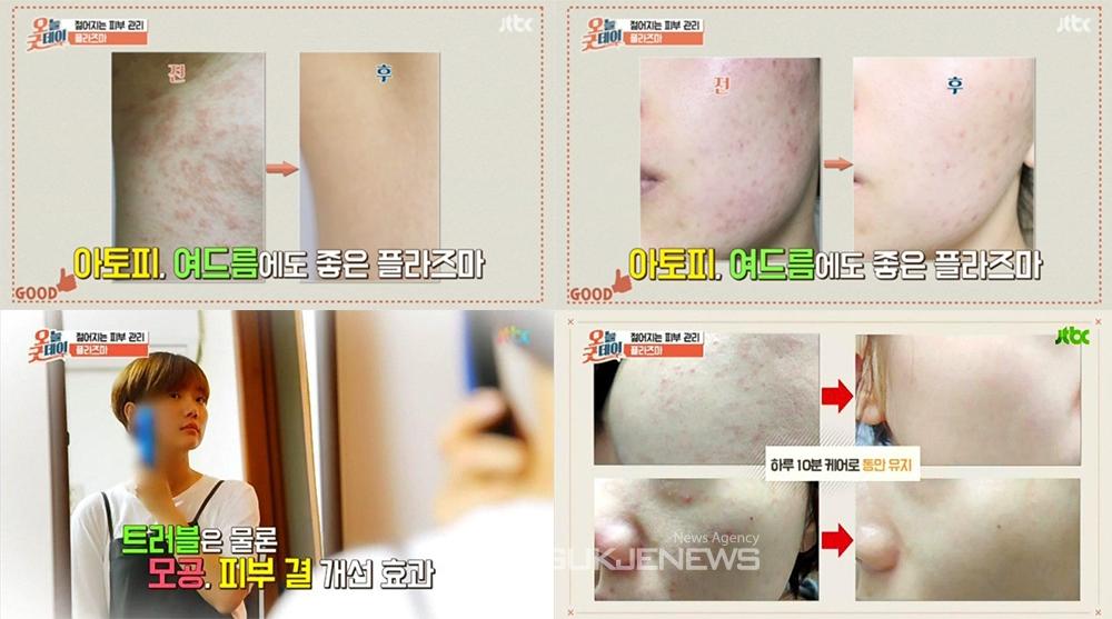 `플라즈마 플라베네 뷰티` 가정용 피부관리기 화제…JTBC '오늘굿데이' 안티에이징, 아토피, 여드름 피부관리에 '플라즈마'