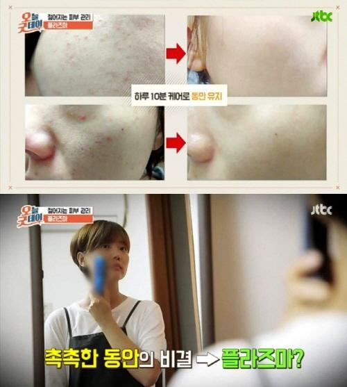 JTBC `오늘굿데이`, 피부탄력 관리 플라즈마 홈케어 `시선집중`…여드름 치료에도 효과적