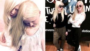 세상에서 가장 아름다운 패션 모델 꿈꾸는 단짝 `알비노` 소녀들