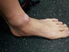 [평창올림픽]갈라진 굳은살에 물집투성이 `못생긴 발'이 메달 일군다