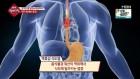 '생생 정보마당' 위가 보내는 경고…국민 고질병 '역류성 식도염'